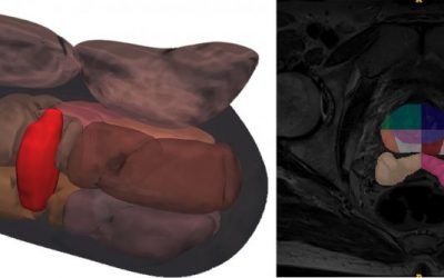 Fighting prostate cancer with over 1.5 million MRI images